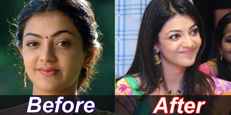 south indian actress images who undergone plastic surgery