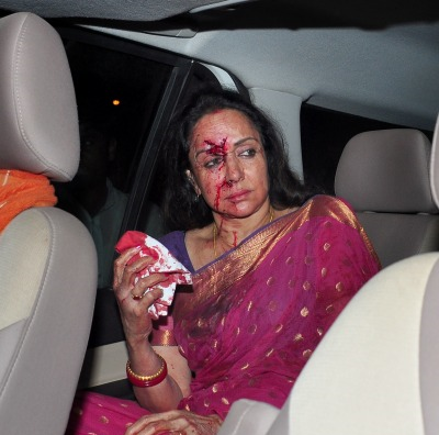 hema-malini-accident-images